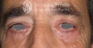 Cirugia de parpados valencia Dr. Terrén