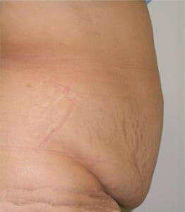 Fotos abdominoplastia antes y despues Dr. terrén Valencia