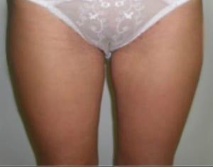 Fotos liposuccion antes y despues Dr. Terrén