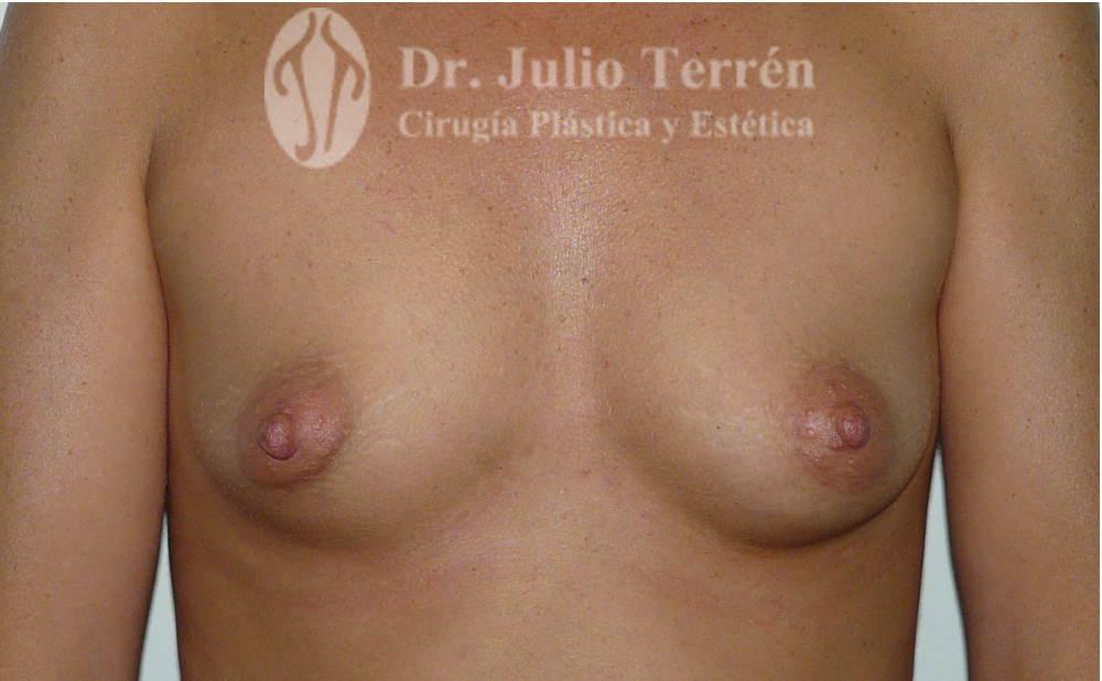 Fotos Pechos tuberosos antes y despues Valencia Dr. Terrén