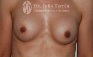 Fotos tras la cirugía de contractura capsular en Valencia por el Dr. Terrén