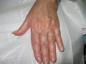Tratamiento rejuvenecimiento de manos Valencia Dr. Terrén
