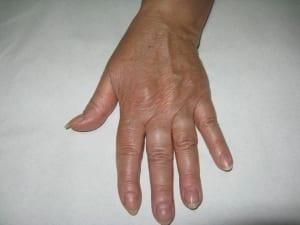 Tratamiento rejuvenecimiento de manos en Valencia Dr. Terrén