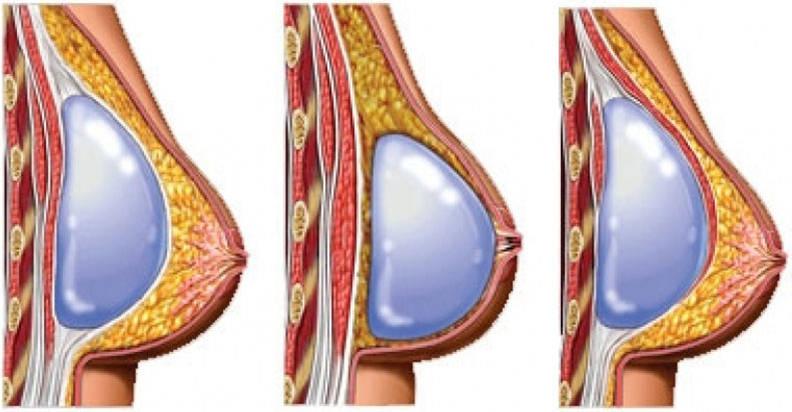 aumento de epchos subfascial: diferencia subglandular y submuscular