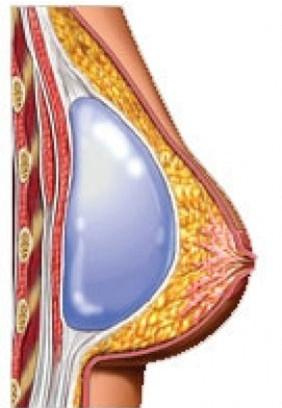 colocacion de implante subfascial