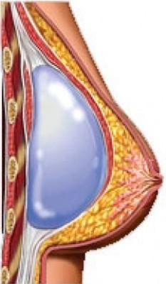 Colocacion de implante submuscular