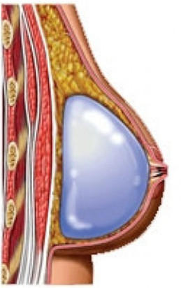 colocacion implantes subglandulares