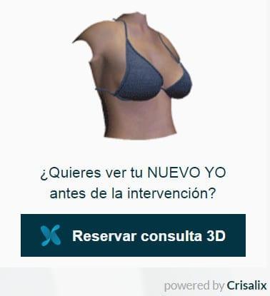 Simulación en 3D de los resultados de tu aumento de pecho antes de la operación.