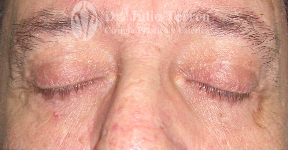 Foto Después de la blefaroplastia Dr. Terrén