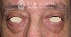 Blefaroplastia antes y despues Dr. Terrén en Valencia