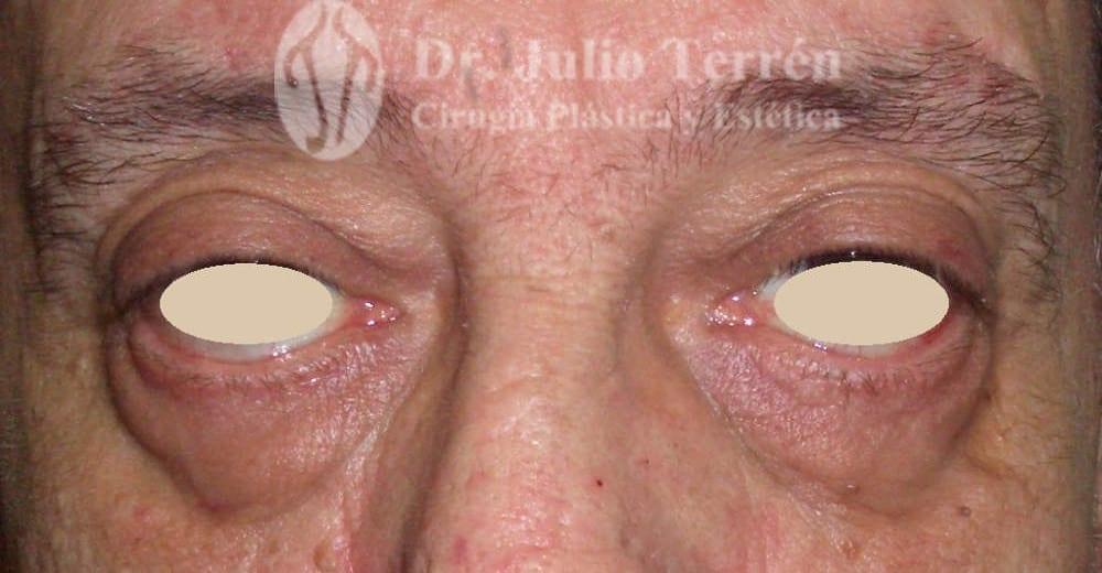 Foto antes de la Blefaroplastia con el Dr. Terrén