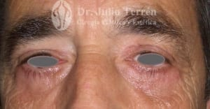 Photo after eyelid surgery Dr. Terrén in Valencia