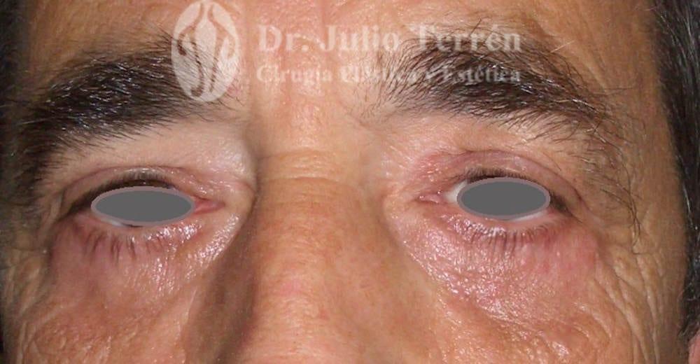 Foto despues Cirugia de parpados valencia Dr. Terrén
