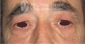 Photo before Eyelid surgery Dr Terrén