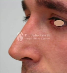 Rinoplasty before and after photos in Valencia Dr. Terrén