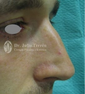 RINOPLASTY in Valencia Dr. Terrén case 1 BEFORE