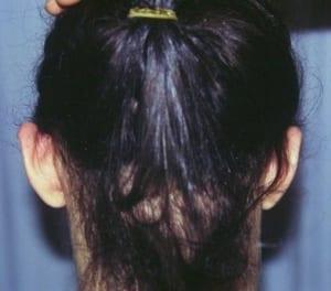 Foto antes de otoplastia u operacion orejas despegadas