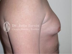 MALE BREAST REDUCTION Dr. Terrén in Valencia