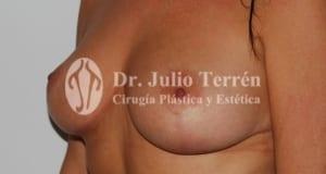 Cirugia mastopexia en Valencia