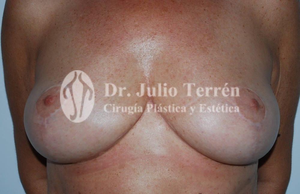 reduccion de mamas, senos o pecho Dr. Terren