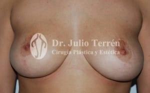 Después de la reducción de senos Valencia Dr.Terren
