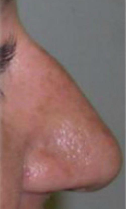 nariz antes de la rinoplastia