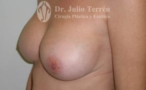 CAPSULAR CONTRACTURE case 1 AFTER VALENCIA Dr TERRÉN