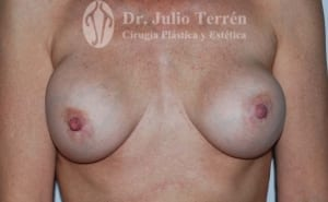CAPSULAR CONTRACTURE case 2 BEFORE VALENCIA Dr TERRÉN