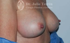 CAPSULAR CONTRACTURE case 2 AFTER