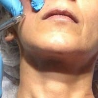 Rellenos faciales clininica Dr. terren valencia