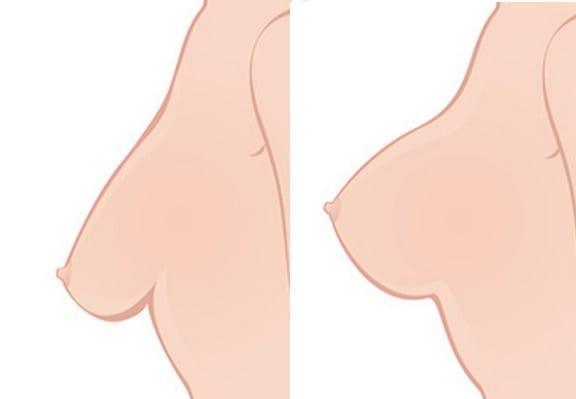 Tipos de mastopexia y cicatrices