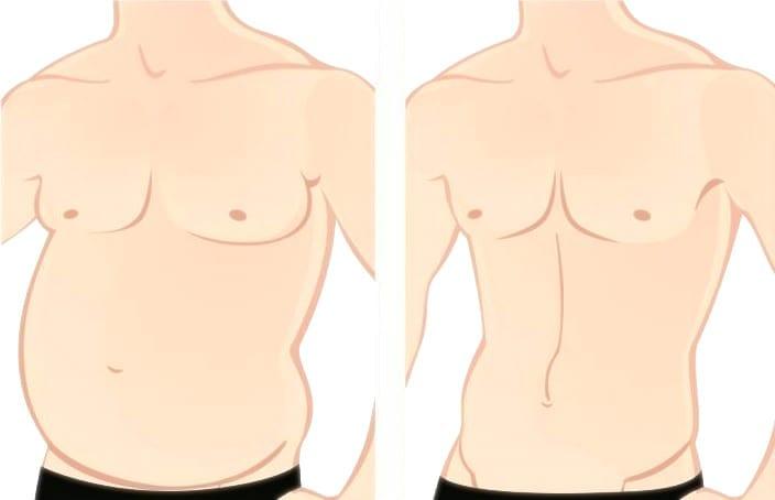¿como saber si tengo ginecomastia o grasa?