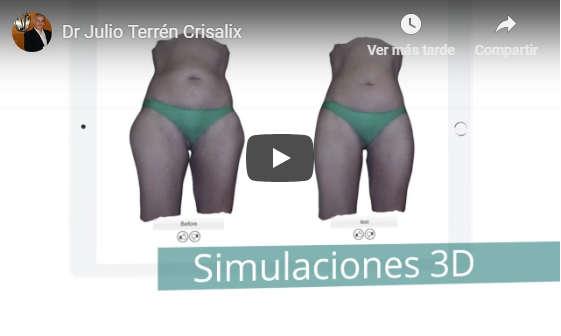 simulador operacion de senos en valencia Dr.Terrén