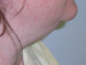 eliminar la grasa en cuello y bajo el mentón