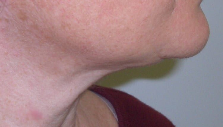 Neck and chin after treatment