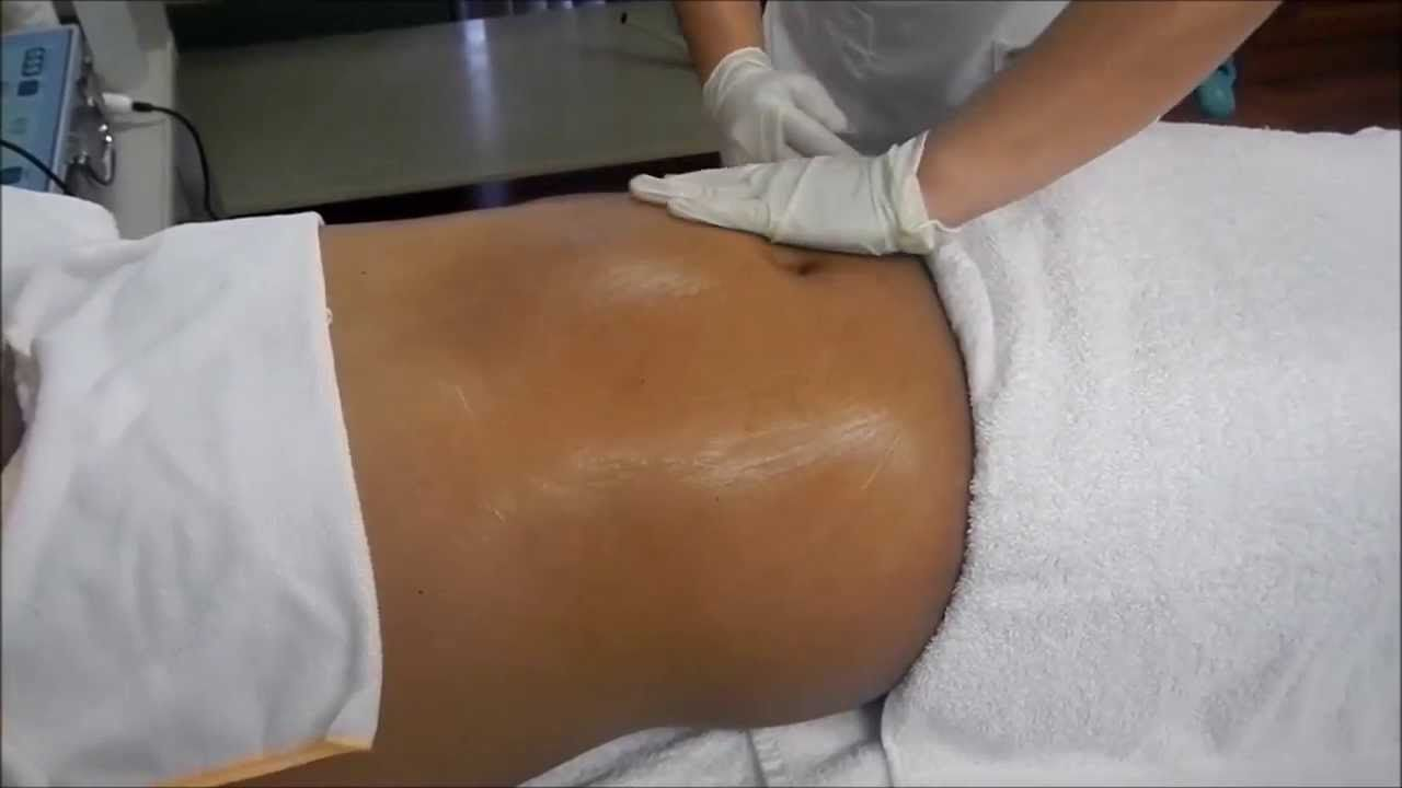 Frenaje linfático post liposuccion Valencia Dr.terrén