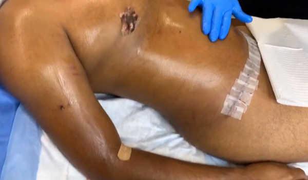 Masaje de drenaje linfático post liposucción y abdominoplastia en Valencia con el Dr. Terrén