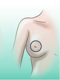 cicatriz periareolar o circular en la mastopexia