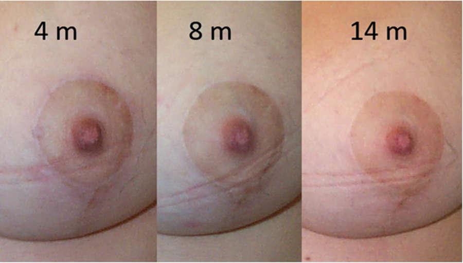 foto evolución de cicatrices de mastopexia con el tiempo