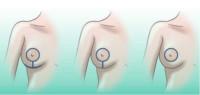 formas cicatriz mastopexia:circulo, vertical o ancla