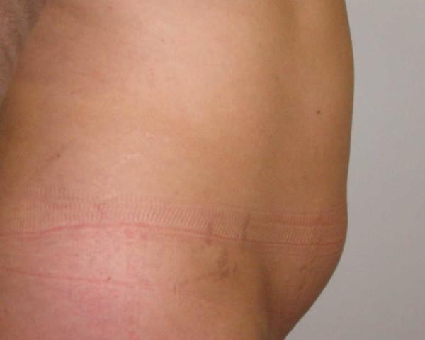 Foto antes lipoescultura abdominal