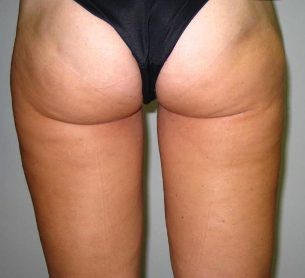 Foto Despues de la lipo de muslos