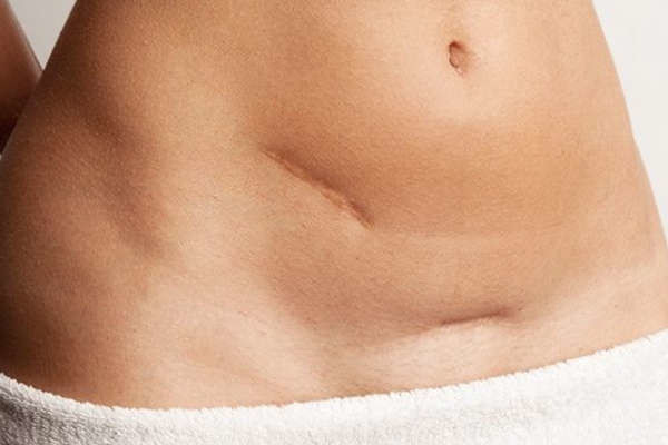 Eliminar cicatrices quirurgicas, atroficas o hundidas Dr. Terrén