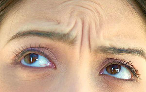 Eliminar arrugas de frente y entrecejo con grasa en Valencia Dr.Terrén