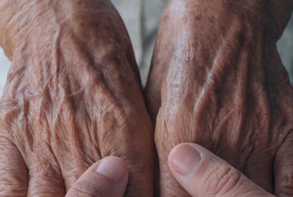Rejuvenecer las manos con grasa porpia Dr. Terrén