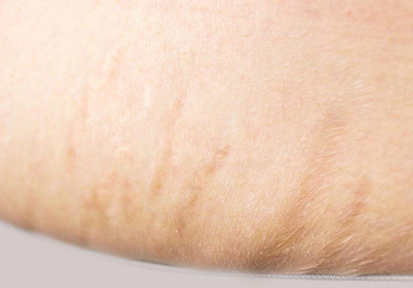 La abdominoplastia puede eliminar las estrías en el abdomen