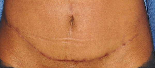 Aspecto de la cicatriz 1 mes después de la miniabdominoplastia