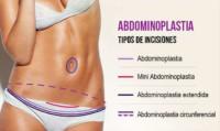 Distintos tipos de incisiones según el tipo de abdominoplastia a realizar