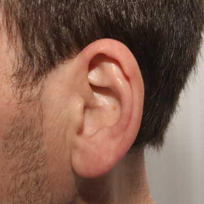 Antes de la reducción de la concha de la oreja