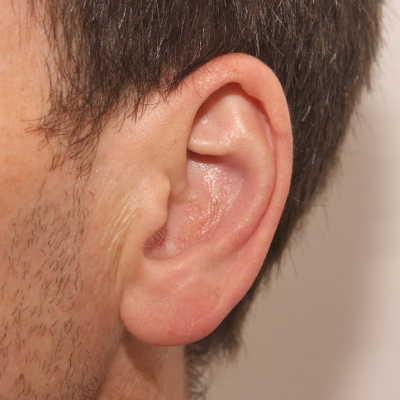Despues de la reducción de la concha de oreja